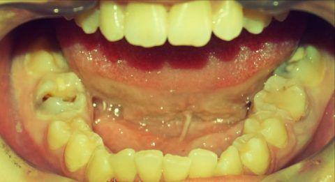 Как лечить некроз челюсти. Остеонекроз челюсти — что это такое, симптомы, лечение и прогноз