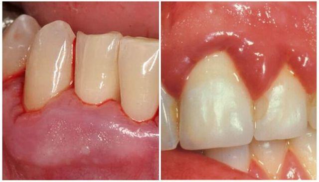В брекетах шатаются зубы — после установки системы двигаются зубные органы