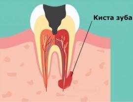 Киста на десне зуба: как выглядит, симптомы, лечение в домашних условиях, последствия