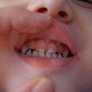 Экзостоз после удаления зуба мудрости: лечение костных выступов в стоматологии, операция и последствия