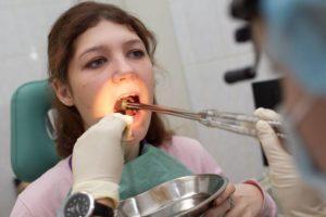 Бактериальный тонзиллит, его связь с зубами: 6 интересных фактов