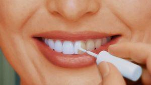 Профилактика кариеса зубов, как избежать, защитить, уберечь и предотвратить у взрослых, защита и лечение, первичное появление
