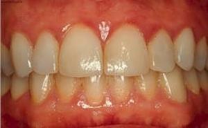 Дырка в десне около зуба: описание с фото, причины появления, лечение