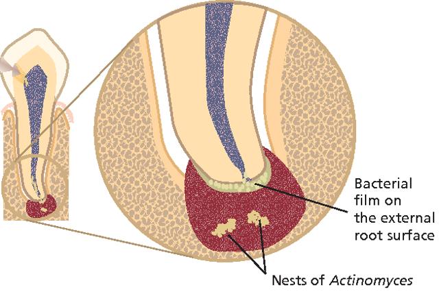 Апикальный периодонтит: что это такое, методы лечения хронического апикального периодонтита