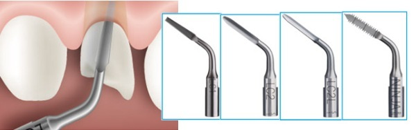 Удаление ультразвуком зуба мудрости: пьезохирургия, что это такое, способ ухаживания после процедуры