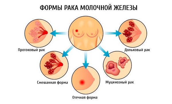 Болезни груди у женщин: классификация, причины, диагностика и способы борьбы с заболеваниями
