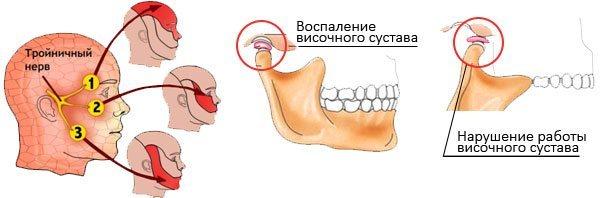 Щелкает и хрустит челюсть при открытии рта и жевании: почему болит и щелкает сустав, что делать