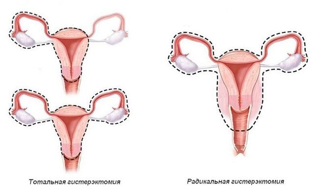Пластика в гинекологии: виды пластических операций после родов, при опущении или удалении матки