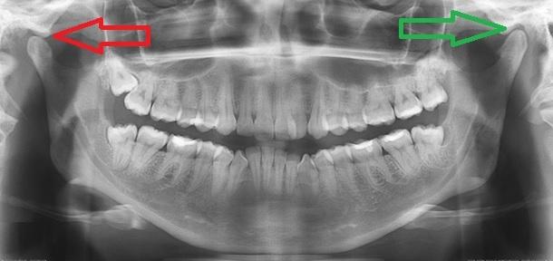 Неврологические осложнения после стоматолога: лицевая боль, болезни лицевого и тройничного нерва, дисфункция височно-нижнечелюстного сустава