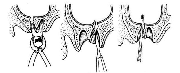 Болит скула на лице – причины, диагностика, лечение