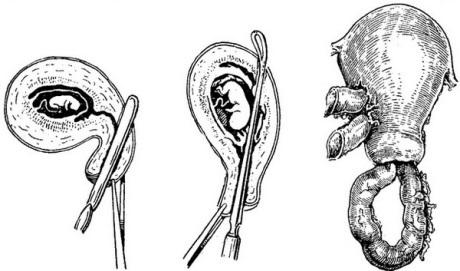 Перфорация матки: причины, симптомы, диагностика, лечение