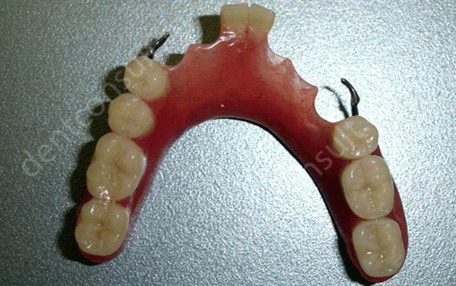 Акриловые зубные протезы (съемные) на верхнюю и нижнюю челюсть, отзывы пациентов