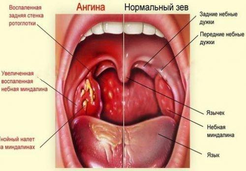 Болит корень языка, больно глотать: причины, заболевания, лечение