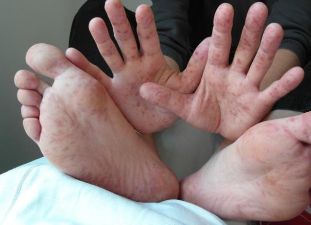 Вирус рука нога рот или энтеровирусный везикулярный стоматит: лечение у взрослых и детей, мнение доктора Комаровского