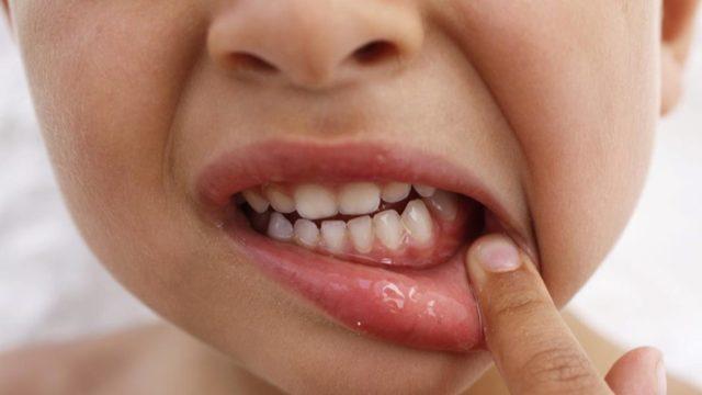 Болит щека у ребенка: возможные причины, способы и методы лечения, профилактика