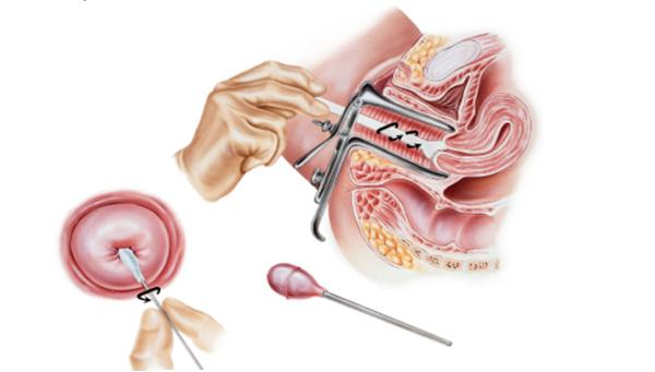 Эктопия цилиндрического эпителия – что это такое и как она проявляется