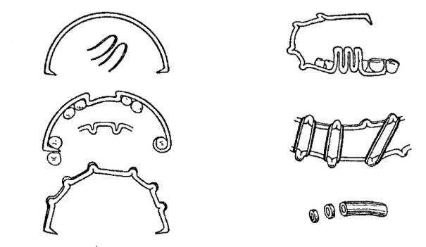 Шинирование при переломе челюсти - сколько носят и как снимают шины