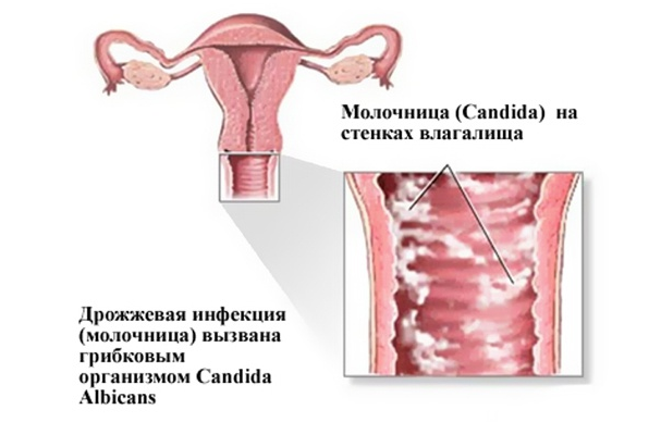 6 неделя беременности: что происходит, узи, выделения