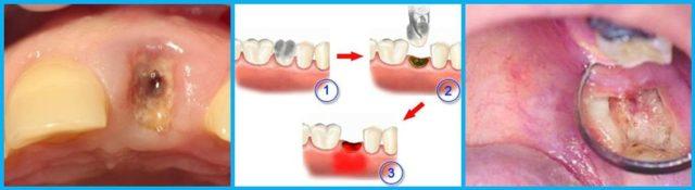 Может ли подняться высокая температура 37 38 и какая может быть от и при зубной боли у взрослого болит зуб что делать