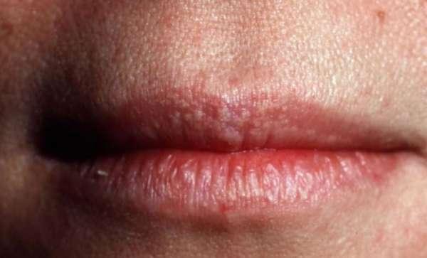 Белые точки на губах под кожей: что это и как лечить прыщики