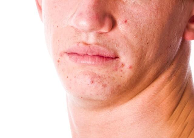 Нервный дерматит: крапивница на нервной почве, аллергия и сыпть от стресса на коже, как лечить