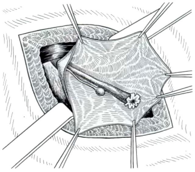 Опасна ли киста круглой связки матки. Кистозное образование в паховой области. Лечение заболевания и диагностика