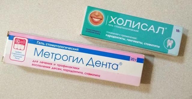 Гингивит у взрослых – симптомы и лечение, фото форм протекания заболевания