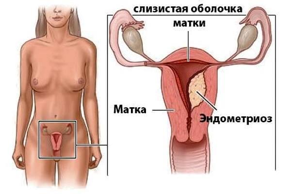 Чем опасен эндометриоз - матки, если его не лечить, для жизни, в 30, 40, 50 лет, для женщин, при климаксе, беременности