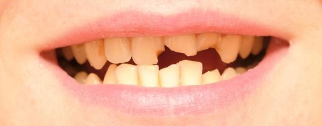 К чему снятся гнилые зубы: сонник, во рту, видеть это у другого человека, вырвать, что значит