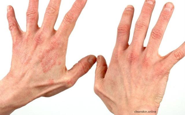 Экзема на руках - причины, симптомы, лечение