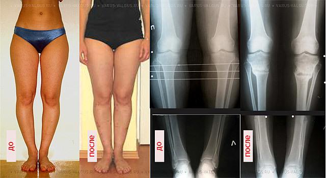 Исправление кривых ног апаратом илизарова: что это, как проводиться, больно ли исправлять кривизну
