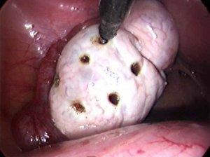 Склерокистоз яичников: что это такое, причины возникновения, лечение, влияние на беременность