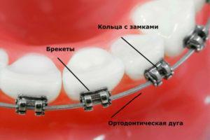 Дуги для брекетов ортодонтические и их виды: классификация по материалу изготовления и форме