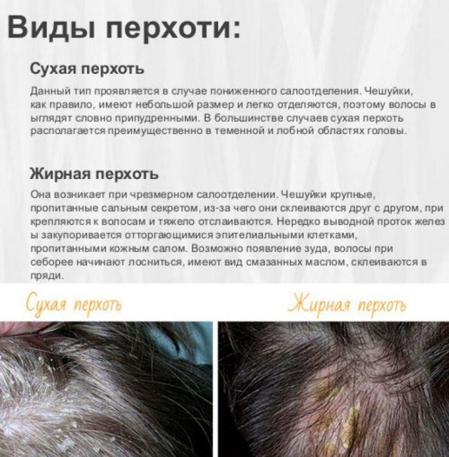 Много перхоти на голове – причины возникновения очень большого количества чешуек, что делать и как лечить народными методами?