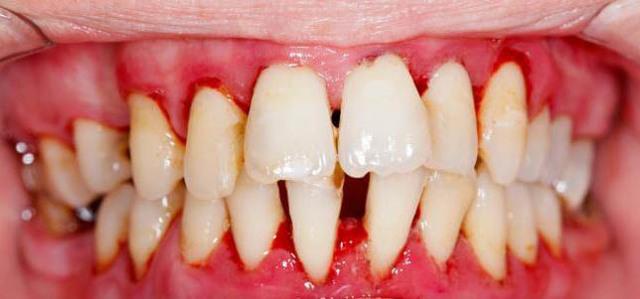 Массаж десен: пальцами, ирригатором, во время чистки зубов, при прорезывании и стоматологических заболеваниях