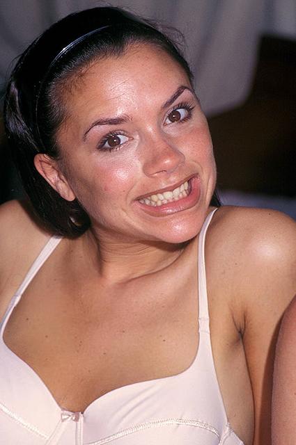 Как сделать красивые, белые, ровные зубы как у звезд и сколько это стоит