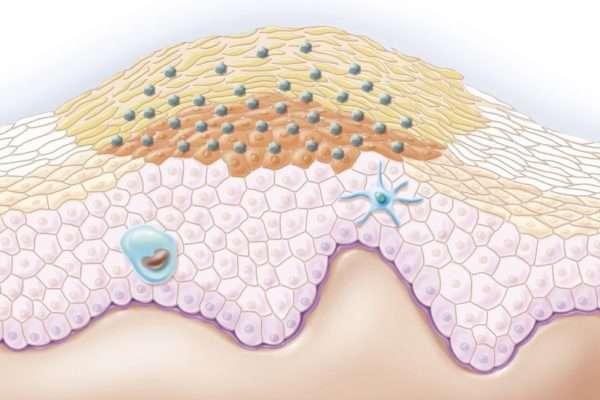 Контагиозный моллюск у женщин: причины и симптомы, в паху, на лице, половых органах, удаление лазером, пинцетом, прижигание