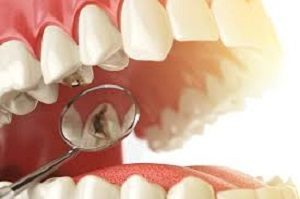 Горечь во рту и горле (по утрам, постоянная): симптомы, причины, лечение привкуса
