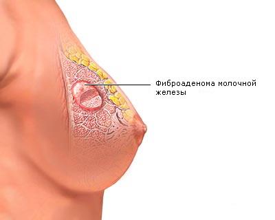 Аденома молочной железы: способы диагностики и методы терапии