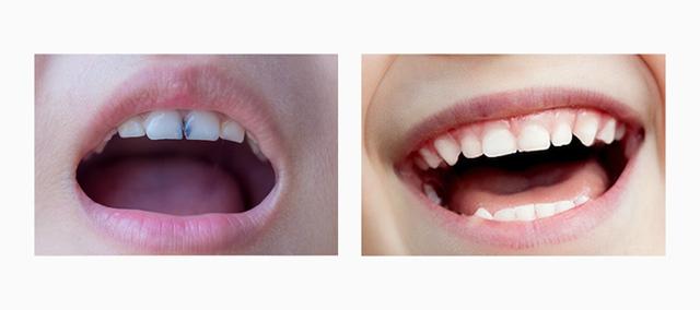 Схема прорезывания зубов: когда у детей появляются молочные и коренные зубы