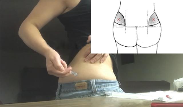 Прогестерон для вызова месячных: полная инструкция по применению уколов, аналоги препарата