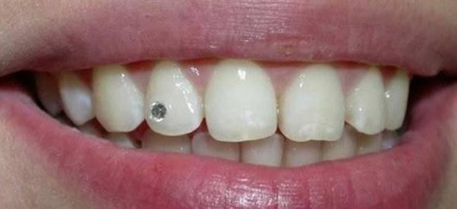 Скайсы из украшения для взрослых превратились в увлечение молодежи стразами на зубах