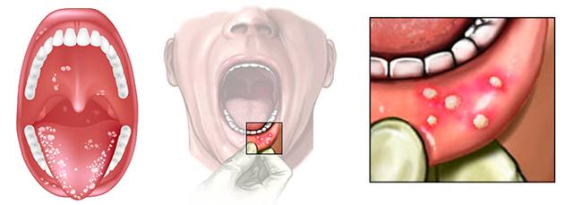 Топ 5 причин ноющей боли в деснах
