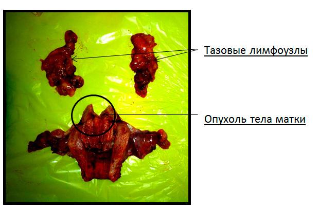 Рак тела матки - симптомы,диагностика и лечение опухоли тела матки на разных стадиях