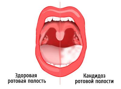 Молочница у ребенка во рту: симптомы у новорожденных, фото и чем лечить заболевание