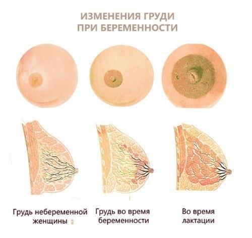 Как болит грудь при беременности, на ранних сроках, как начинает и перестает