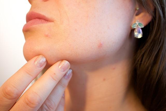 Прыщики, угри, сыпь и другие проявления аллергии на лице — показатель проблем образа жизни. Питание, вода, воздух, движение, настроение