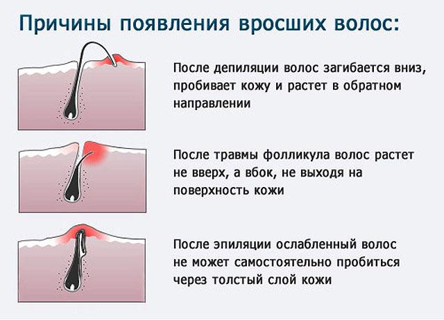 Врастают волосы после шугаринга: почему так происходит и что делать, обзор методов лечения и профилактики