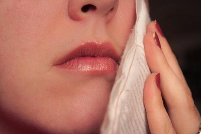 Пародонтальный абсцесс – причины образования гнойного очага в десне и способы его устранения