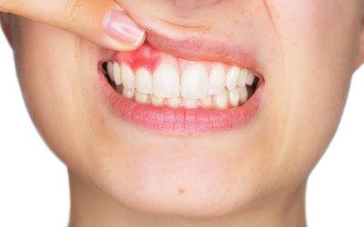 Можно ли удалять зуб во время месячных: когда допустимо удаление зуба и причины, почему нельзя